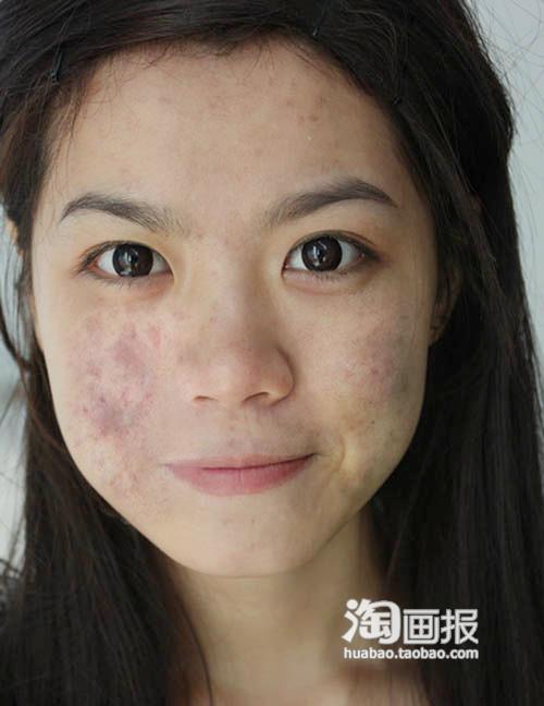 感谢达人:粉紫芭莎提供原图素材长痘痘~~留痘印~~~痘痘,粉刺,暗疮一直